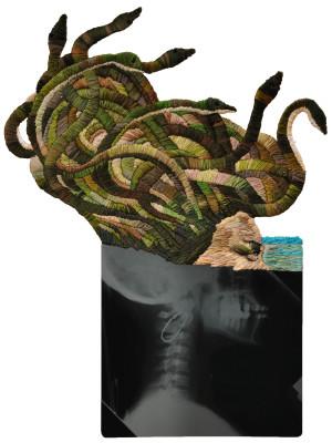 Matthew Cox Medusa-profile